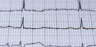 errata valutazione sintomi infarto
