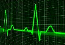 morta per un infarto del miocardio