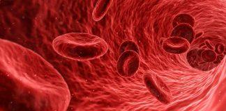 trasfusione con sangue infetto