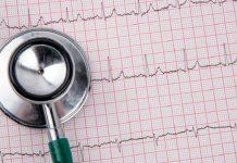 tachicardie ventricolari