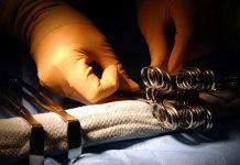 Deviazione della protesi al seno