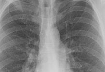 radiografie al torace