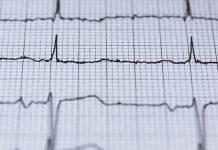 tre arresti cardiaci