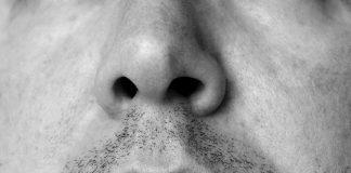 frattura spina nasale