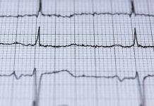 danni permanenti al cuore
