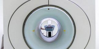 aneurisma cerebrale non diagnosticato