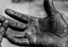 schiacciamento della mano